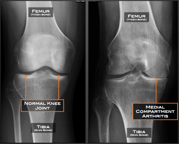 Unicompartmental knee replacement matthew driscoll md orthopedic partial unicompartmental knee replacement hip anatomy the x ray ccuart Images